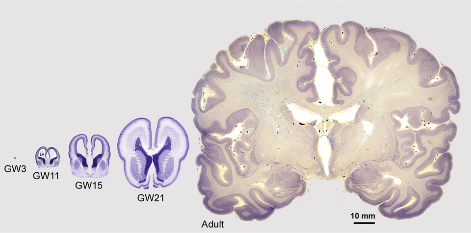 Various stages of prenatal cortical development, and an image showing the mature adult cerebral cortex.